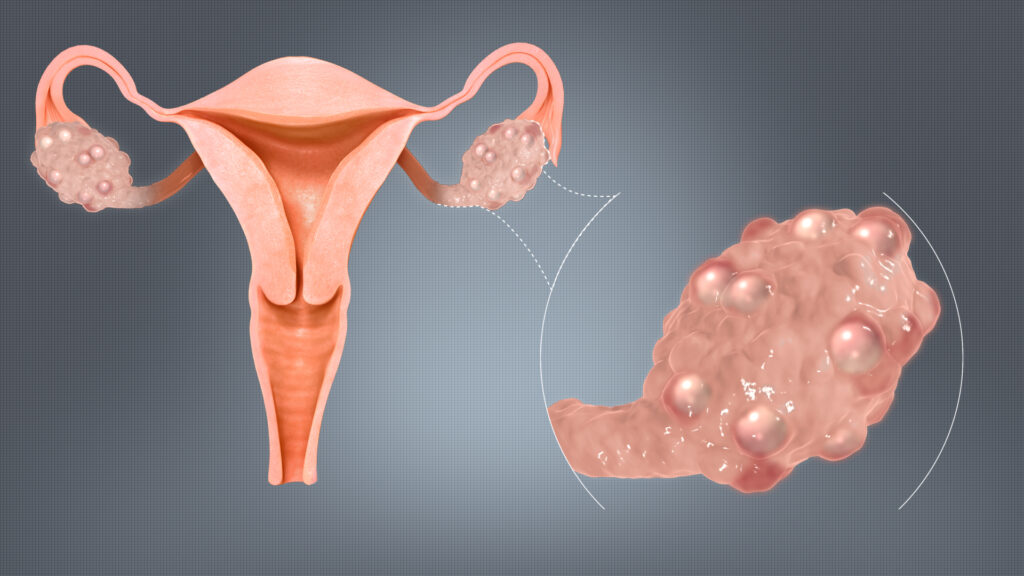 киста яичника и лишний вес