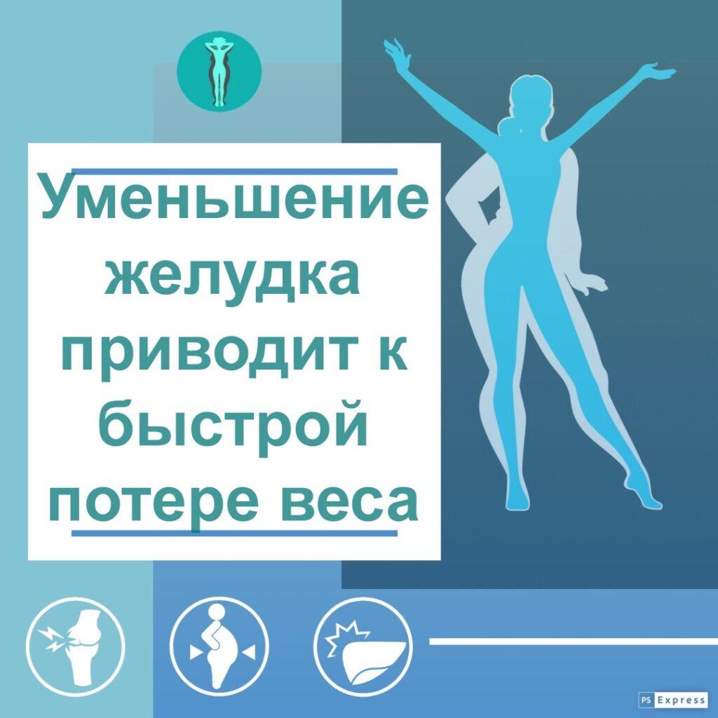 Уменьшение желудка приводит к быстрой потере веса